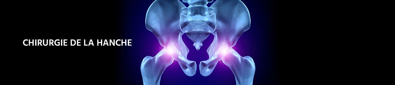 Arthrose et Ostéonécrose de la hanche à Colmar